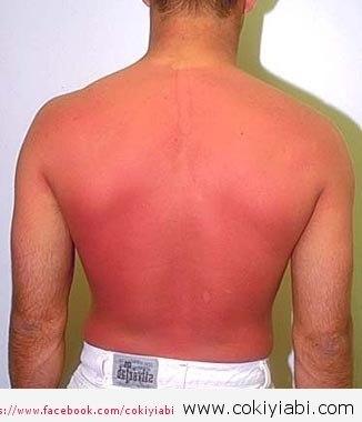 Güneşten yandığında neler yapılmalı,Güneş yanığına Ne iyi gelir ?