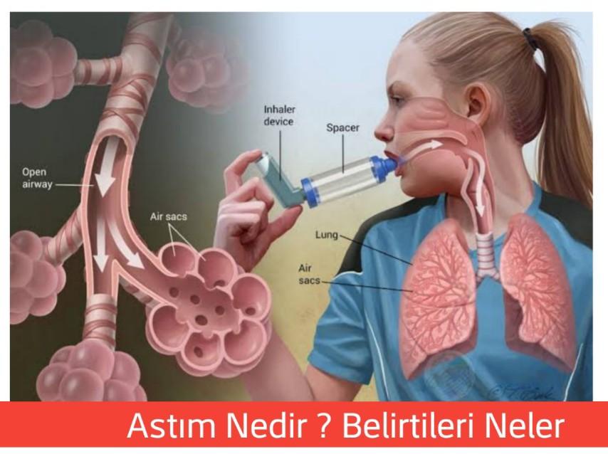 Astım hastalığı hakkında bilgiler