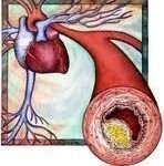 Kolestereol nedir iyi ve Kötü Kolesterol nedir