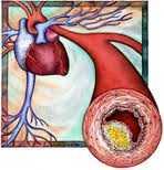 Kolestereol Nedir? İyi ve Kötü Kolesterol Nedir?
