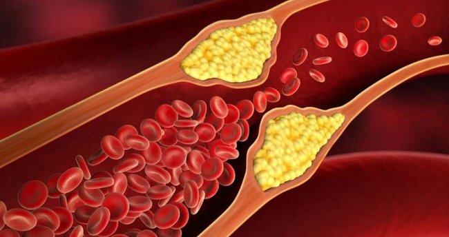 Kolesterol Yüksek Olursa Ne Olur?