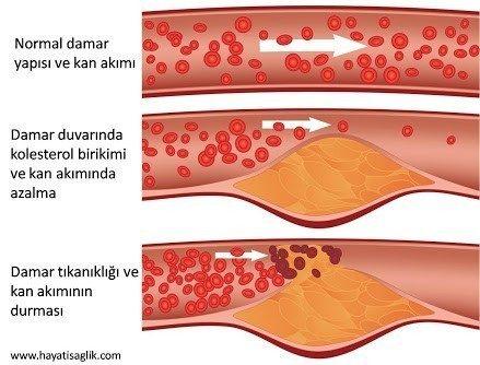 Kolesterol düşürücü bitkiler