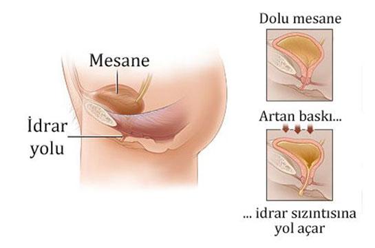 Sistit Hastalığı tedavisi nasıl olur