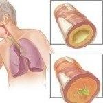 Bronşit Hastalığı NEdir ? NAsıl Oluşur İzleyin