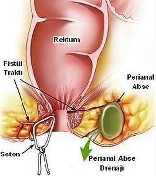 Anal Fistul Nedir, Fistul Ameliyatı Yorumları