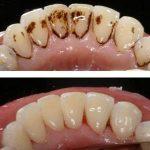 Dogal Yöntemlerle Diş Temizliği