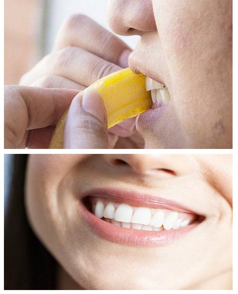 evde muz kabuğu işle diş beyazlatma tarifi