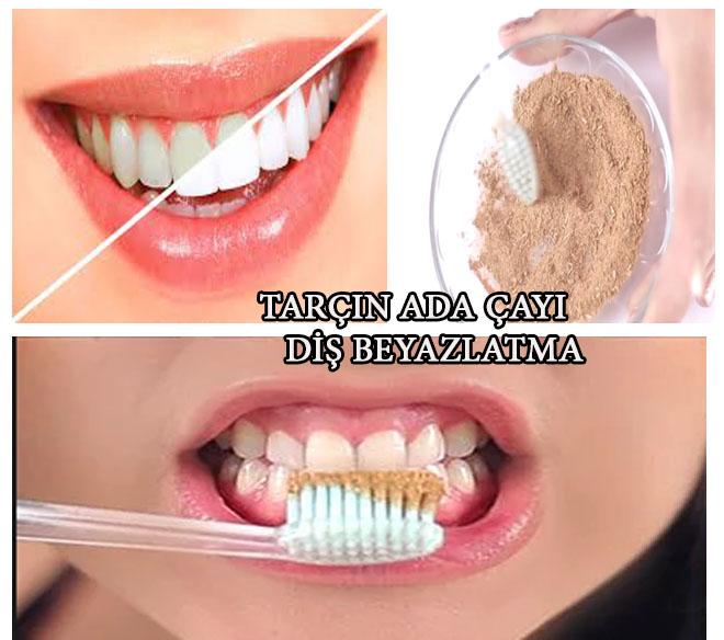 evde doğal yöntem ile diş beyazlatma