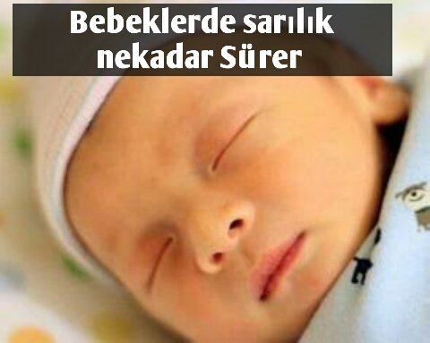 Bebeklerde Sarılık Kaç Gün Sürer