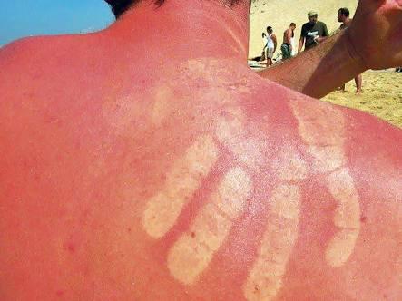 Güneş Yanığı'na Evde Tedavi Yöntemleri