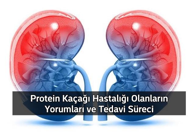 Protein Kaçağı Hasta Yorumları