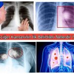 Akciğer Kanseri belirtisi