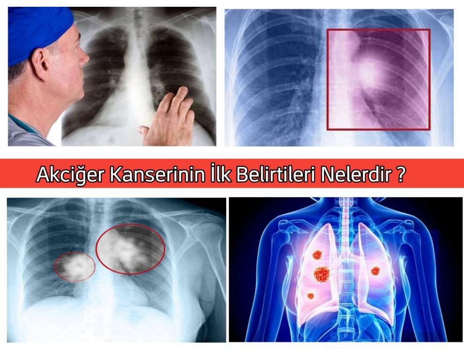 Akciğer Kanserinin İlk Belirtileri Nelerdir ?