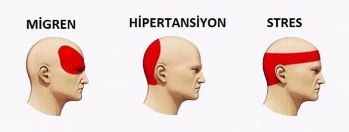 Stres ağrısı başın hangi kısmında olur
