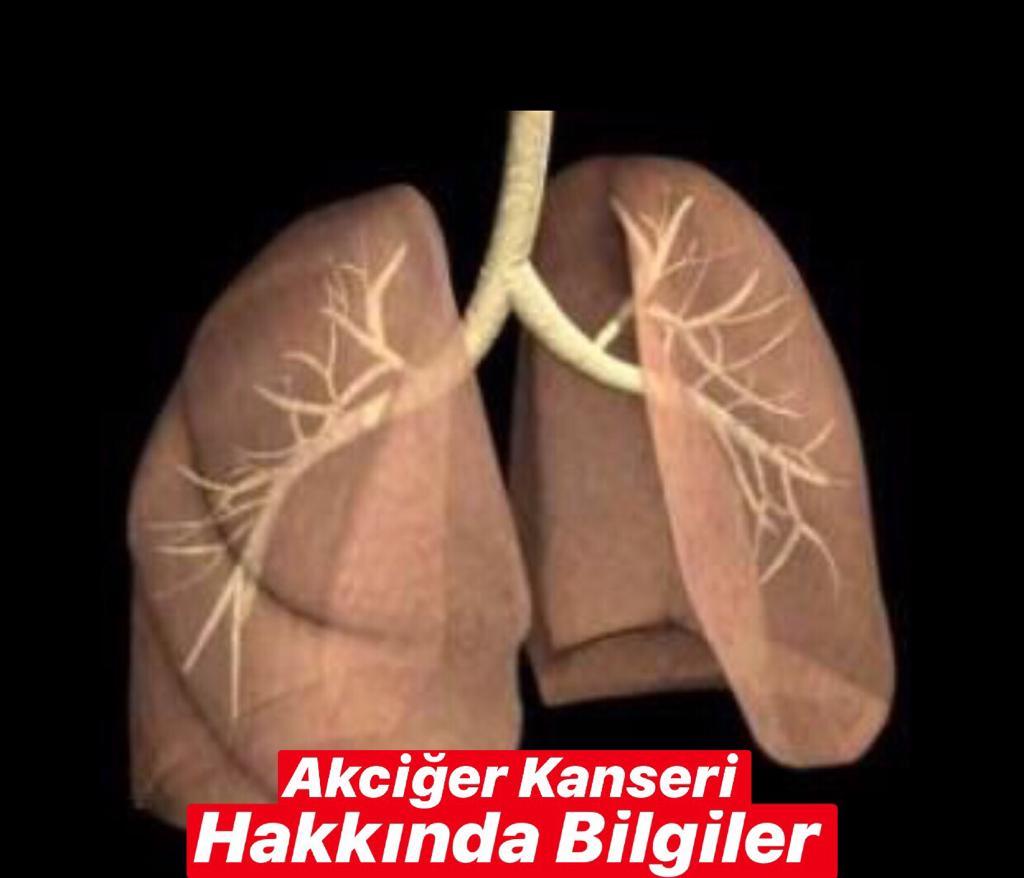 Akciğer Kanseri Hakkında Bilgiler