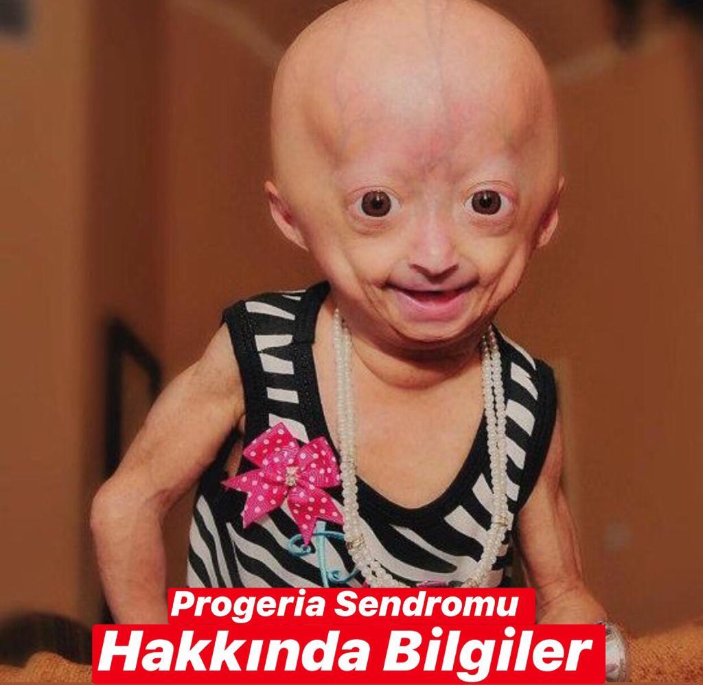 Progeria Sendromu Hakkında Bilgiler