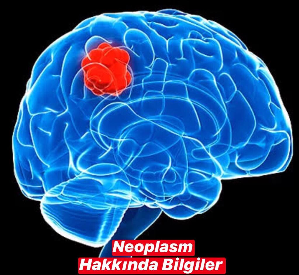 Neoplasm Hakkında Bilgiler