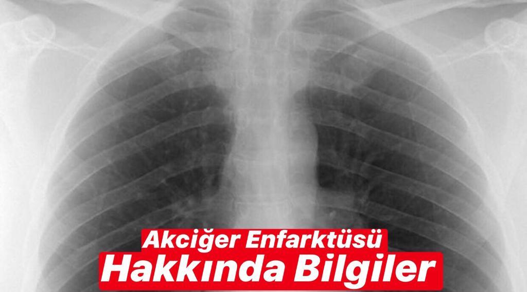 Akciğer Enfarktüsü Hakkında Bilgiler