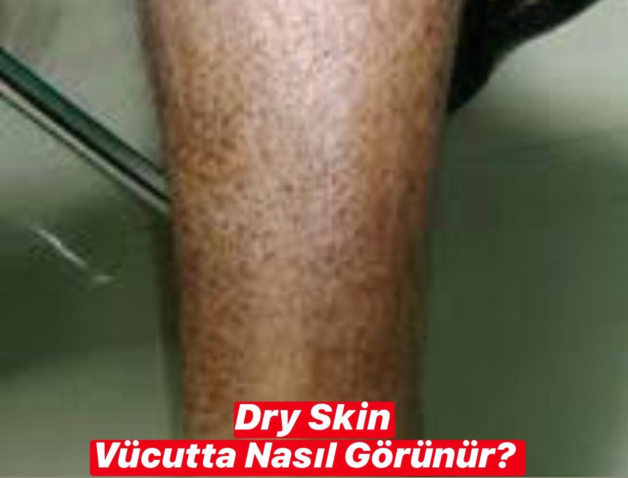 Dry Skin Vücutta Nasıl Görünür ?