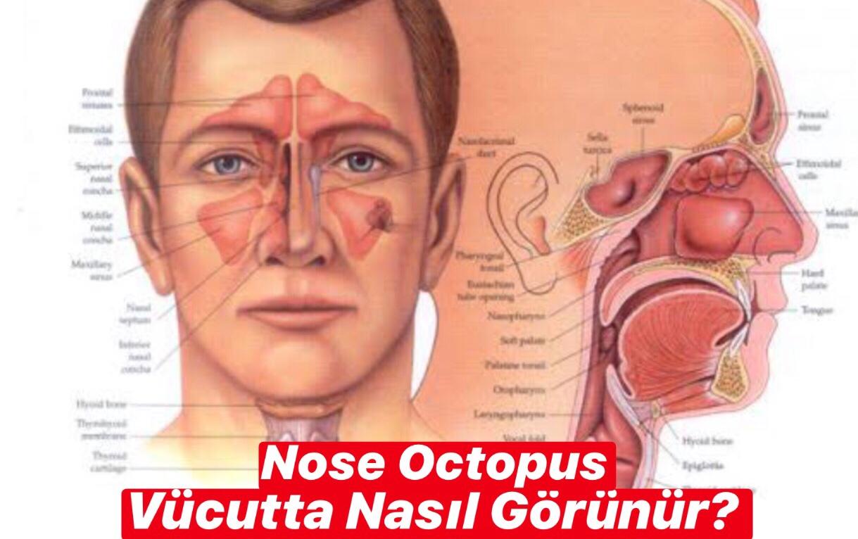 Nose Octopus Vücutta Nasıl Görünür ?