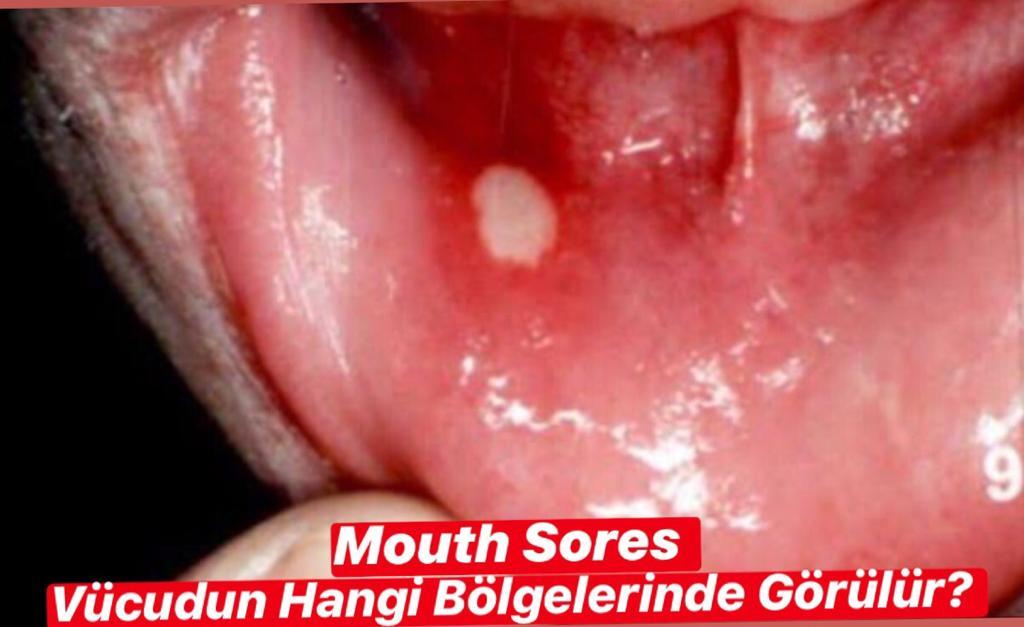 Mouth Sores Hangi Bölgelerde Görülür ?