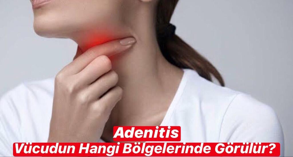Adenitis Vücudun Hangi Bölgelerinde Görülür ?