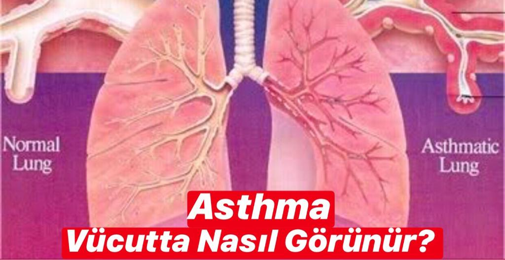 Asthma Vücudun Hangi Bölgesinde Görünür ?