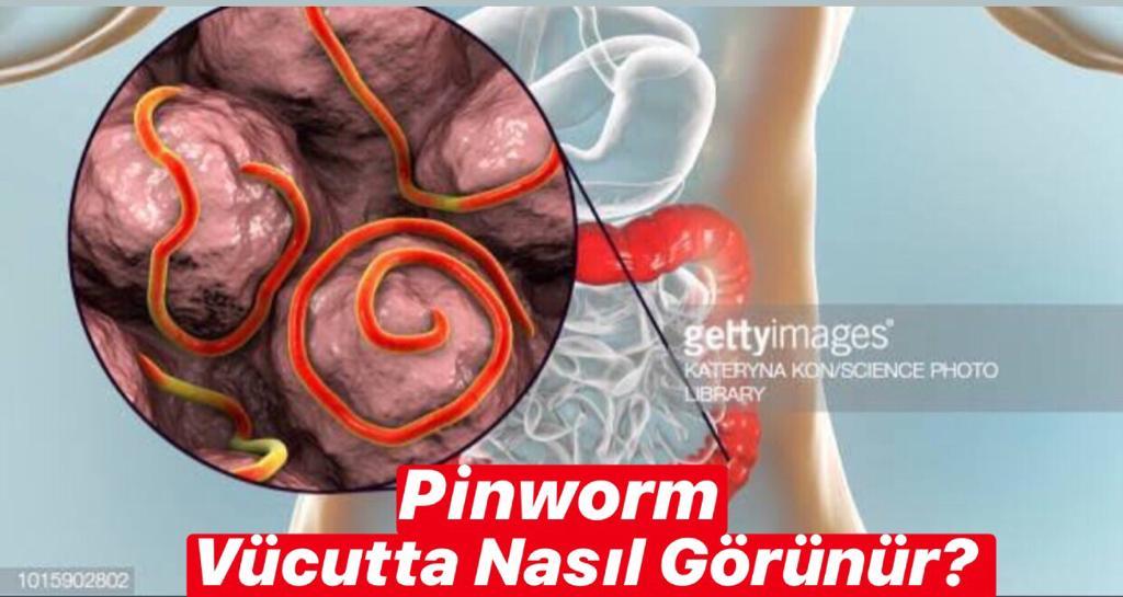 Pinworm Vücutta Nasıl Görünür ?
