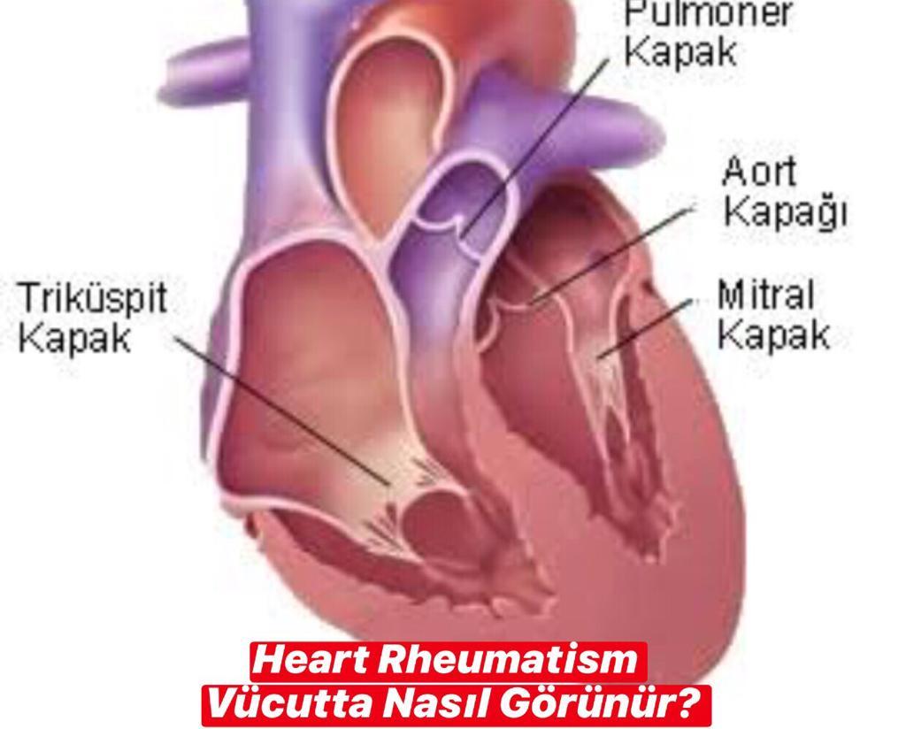 Heart Rheumatism Vücutta Nasıl Görünür ?