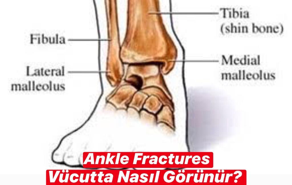 Ankle Fractures Vücutta Nasıl Görünür ?