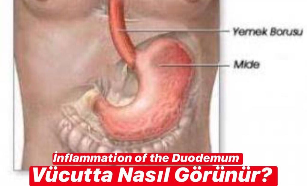 İnflammation of the Duodenum Vücutta Nasıl Görünür ?